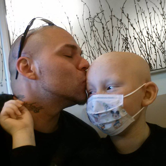 Corrente do Amor: pai tatua cicatriz de filho com câncer na própria cabeça