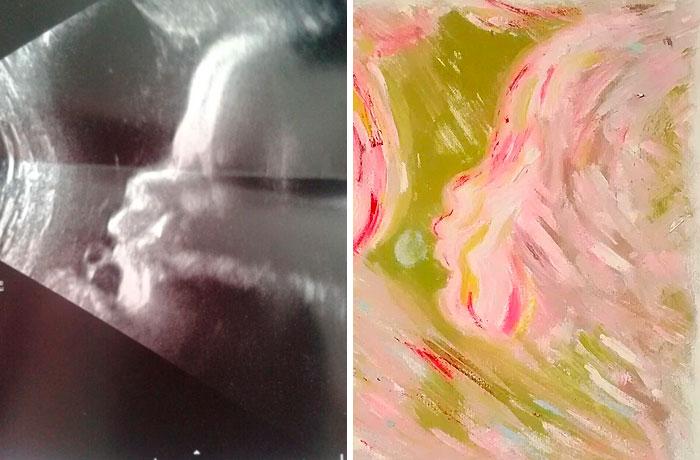 Artista transforma ultrassonografias em obras incríveis